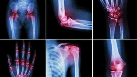 că se înțepă în articulație de durere