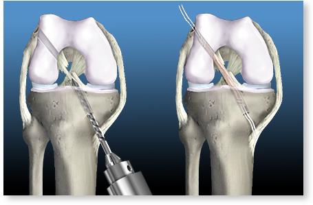 provoacă durere în articulații și mușchi