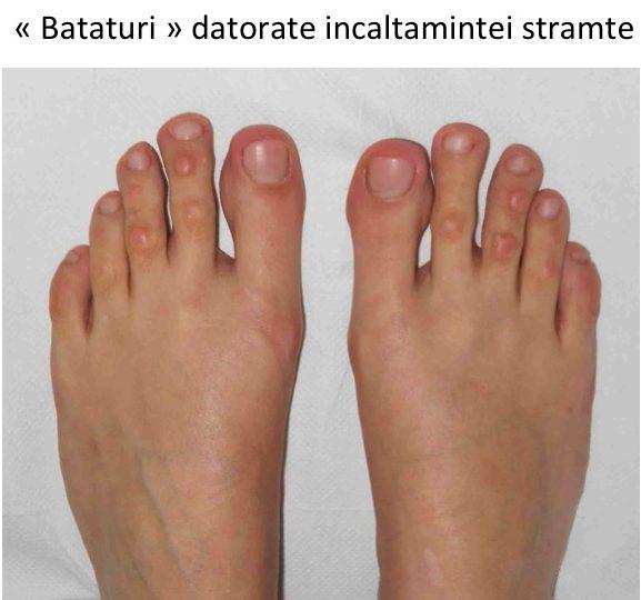 unguente pentru tratamentul artritei degetelor de la picioare durere bruscă în articulațiile degetelor mari
