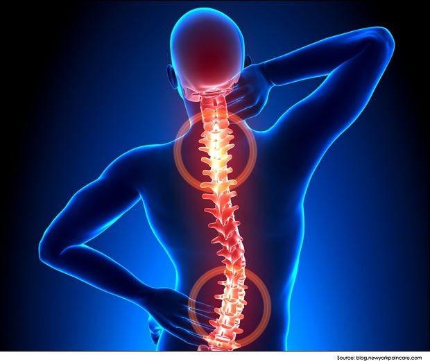 articulațiile dureroase zdrobesc coloana vertebrală tratamentul homeopatiei displaziei țesutului conjunctiv