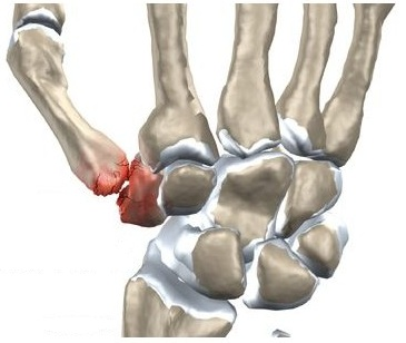 durere articulară deget mic
