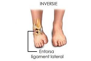 ruperea timpului de tratament al ligamentelor gleznei articulația cotului doare după bara orizontală