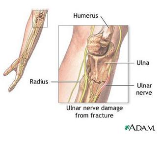 articulațiile cotului durează mâinile amorțite tratamentul articular cu condroprotectori
