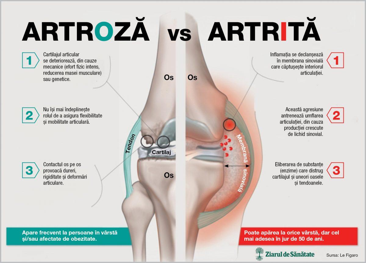 artrita pentru articulatiile genunchiului Bucăți de ulei