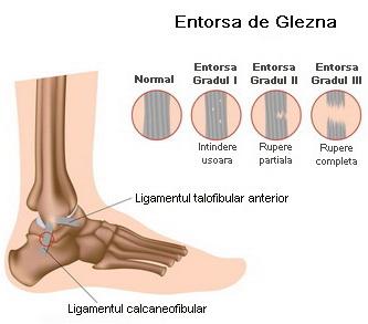 tratamentul articulațiilor dureroase și umflate ale gleznei ce plante medicinale pentru durerile articulare