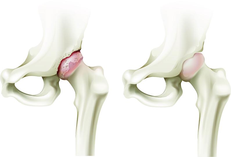 durere rătăcitoare în articulațiile și mușchii picioarelor nospa pentru dureri articulare