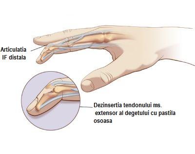 cum să tratezi o articulație pe deget artroza tratarea frunzelor de artar