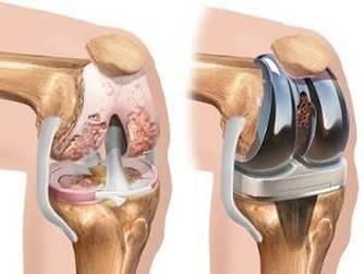 ciment până la articulația genunchiului durere în articulațiile picioarelor în repaus