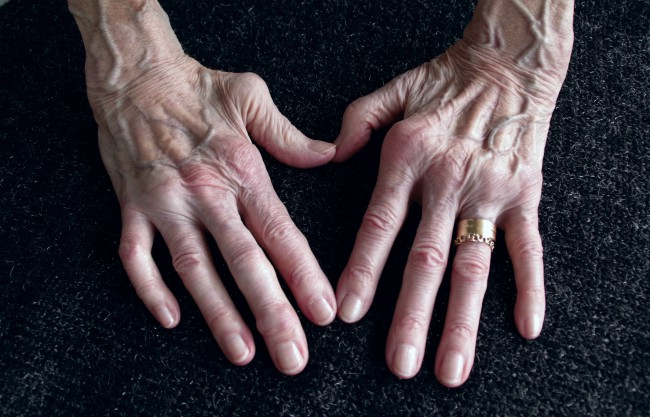 artrita articulațiilor degetelor simptome și tratament curs de tratament comun