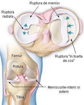 diagnosticarea durerii în articulațiile șoldului