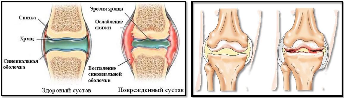 artroza articulației pelvine dieta alimentara cruda in tratamentul artrozei