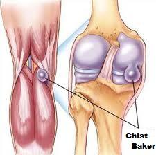 chist și dureri articulare tratarea cu laser a artrozei degetelor