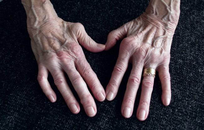 pierderea în greutate pentru pacienții cu artrită