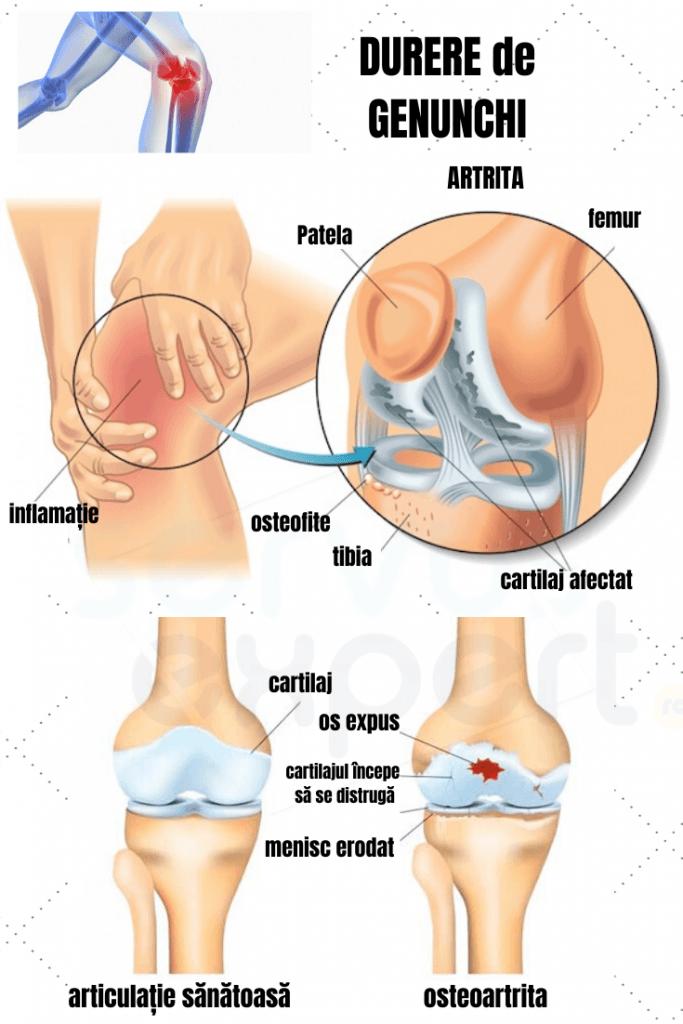 dureri la nivelul articulațiilor șoldului și la genunchi