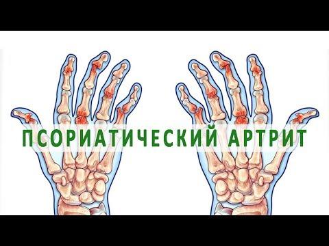 inflamația articulară a unguentului degetelor simptome de durere în articulația genunchiului
