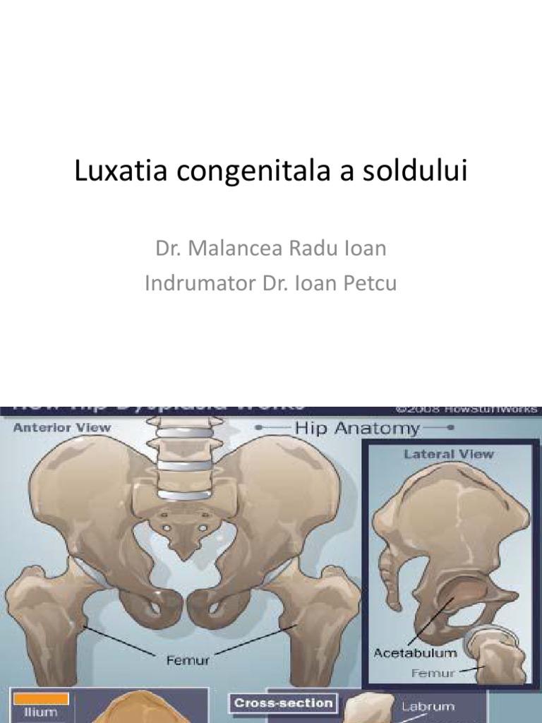luxația congenitală a tratamentului articulației șoldului