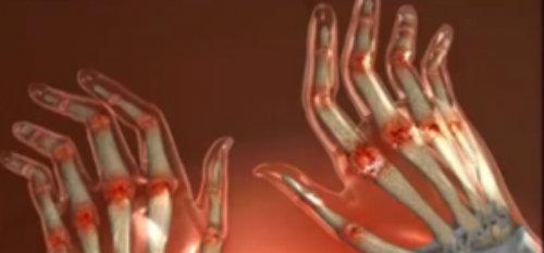 articulațiile degetelor dintr-o mână doare