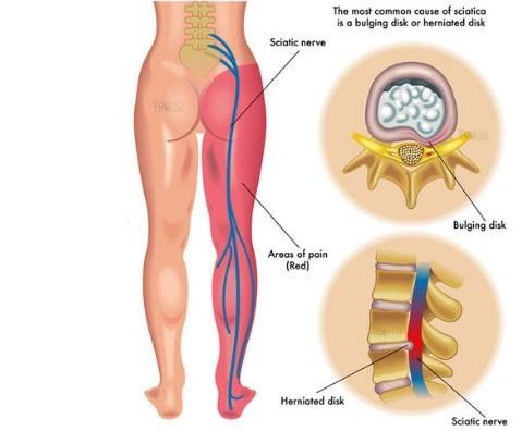 Dureri musculare de fese. Durere la nivelul feselor și picioarelor cu hemoroizi
