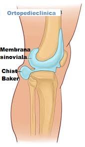 chist și dureri articulare artroza simptomelor șoldului și