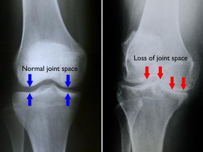 artrita falangei degetelor de la picior