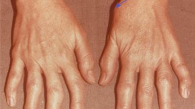 poliartrita tratamentului articulației genunchiului durerile și durerile articulare
