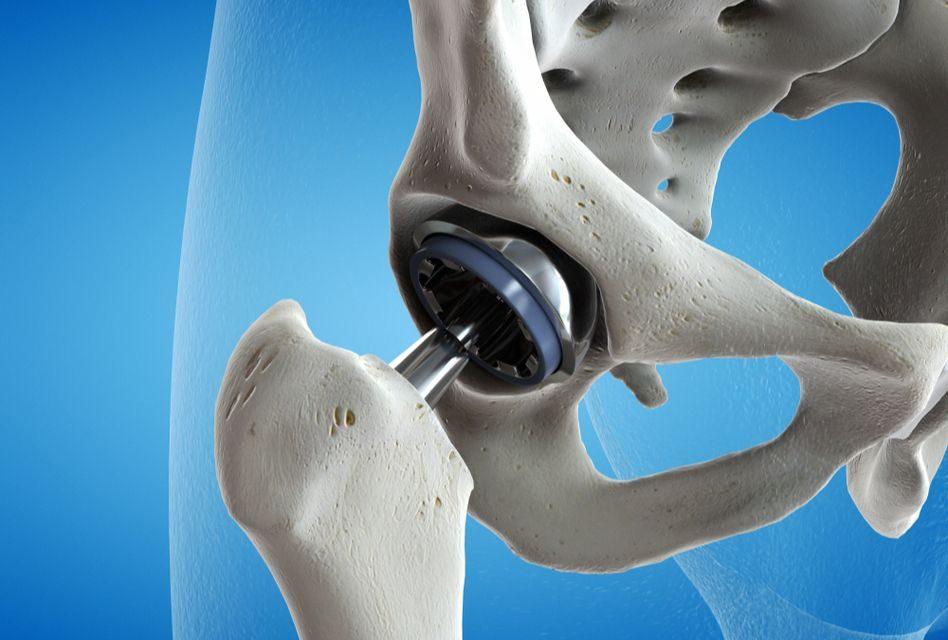 compresa pentru durerea articulară dimexidum durere durere în forul articulațiilor umărului