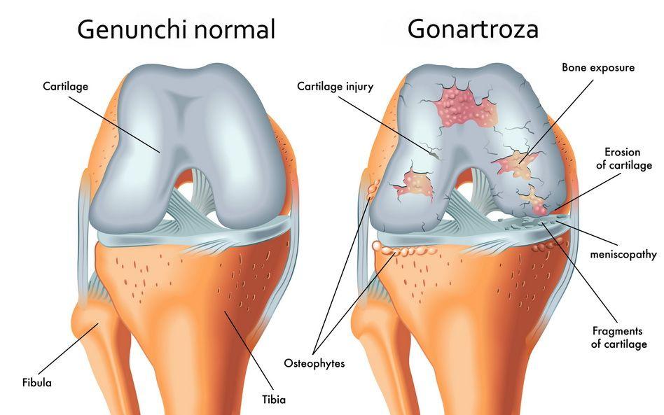 artroza genunchiului al 3-lea tratament tratament comun pentru obezitate