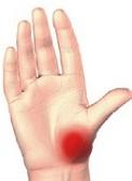 tipuri de leziuni articulare de prim ajutor ce să luați dacă articulațiile degetelor doare