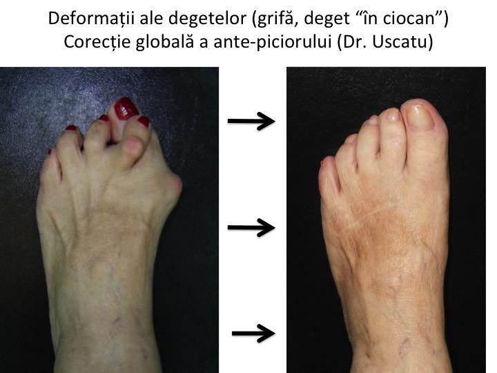 unguente pentru tratamentul artritei degetelor de la picioare tratamentul durerii în articulațiile piciorului