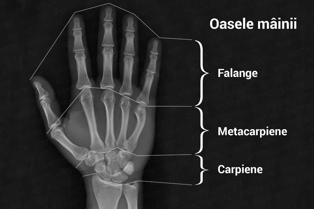 articulații după o fractură ce medicamente ameliorează inflamația articulației umărului