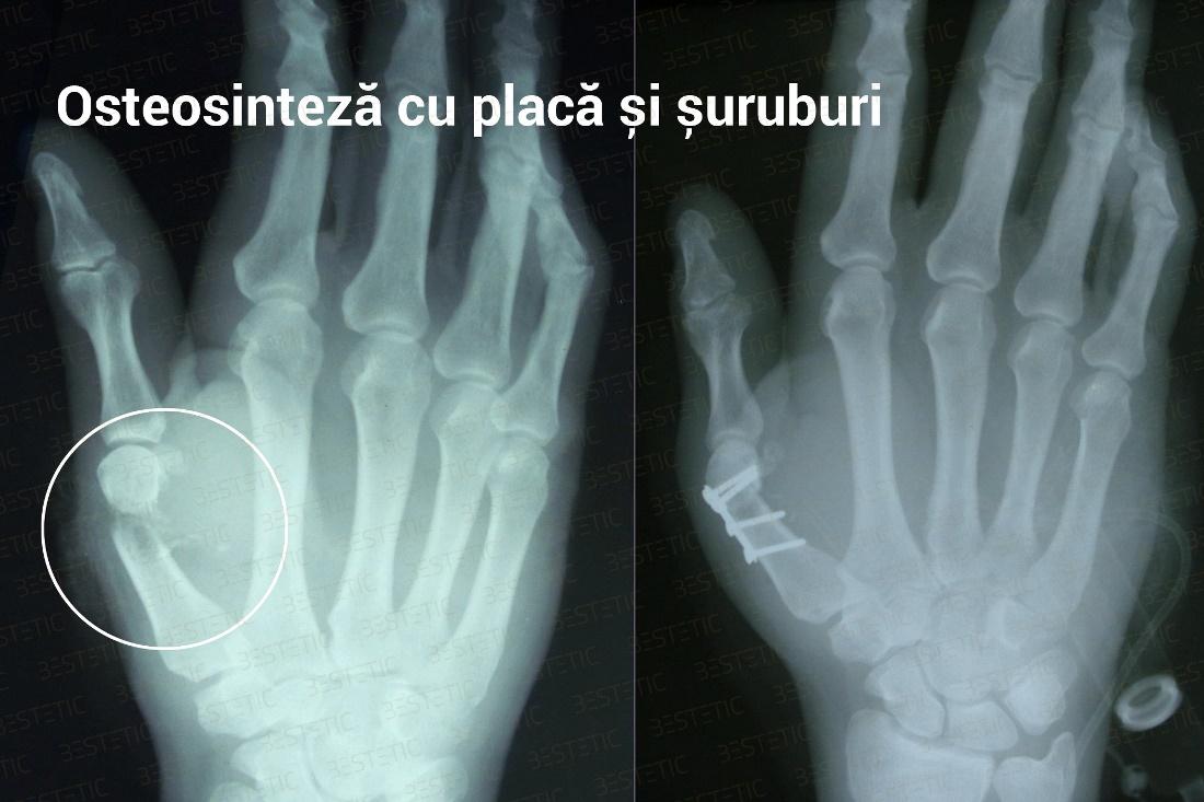 articulații după o fractură simptomele artritei reumatoide ale genunchiului
