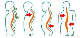 boli de cartilaj ale coloanei vertebrale