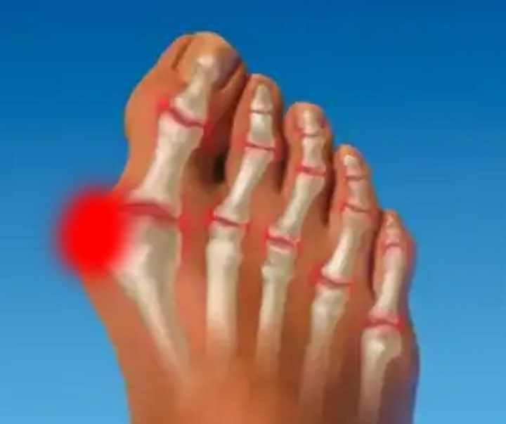 dureri musculare și articulare după stres cum să alinați durerea în articulațiile degetelor