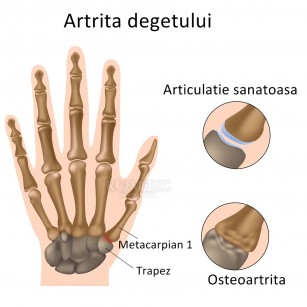 artrita articulațiilor degetelor simptome și tratament țesut conjunctiv de cartilaj elastic