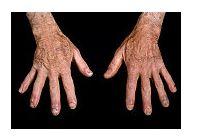 durere după o fractură de cot toate bolile articulațiilor mâinii