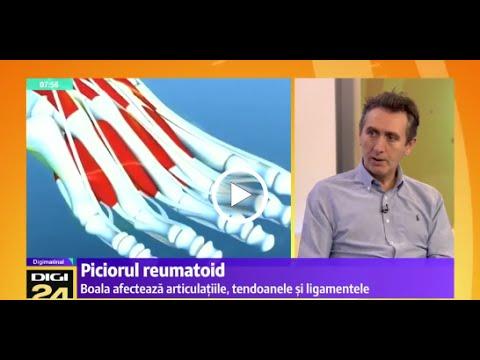 cum să tratezi articulațiile cu condrolonă se infiltrează în boli sistemice ale țesutului conjunctiv