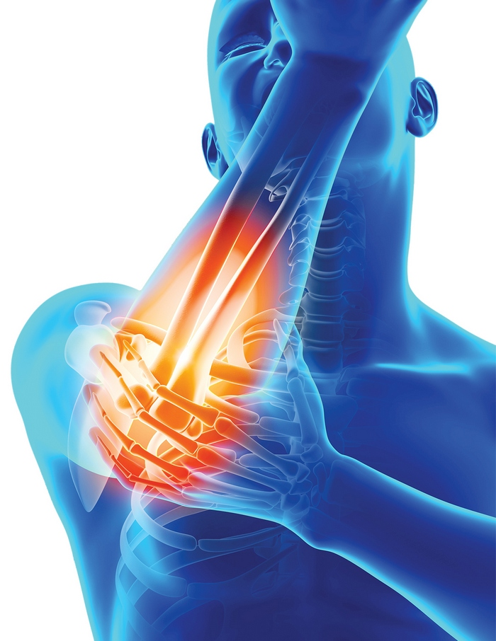 dureri în diverse articulații
