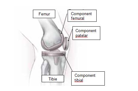ciment până la articulația genunchiului dureri articulare cauze metafizice