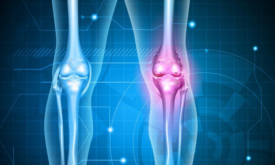 tratamentul clinic al artrozei genunchiului medicamente pentru durerea în articulațiile coloanei vertebrale