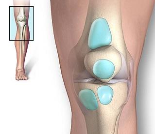 dureri de genunchi cu umflături