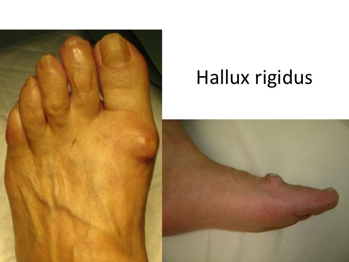 homeopatie în tratamentul artrozei piciorului Boala oaselor și articulațiilor Remberg