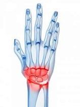 inflamația articulației mâinii drepte