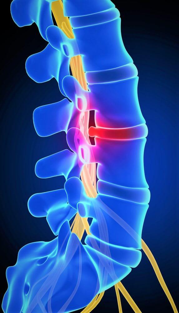 Medicina regenerativa a cartilajului | tehnicolor.ro