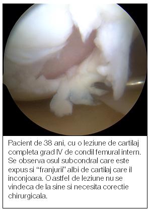 crin comun al văii tratamentul artrozei la Carpați