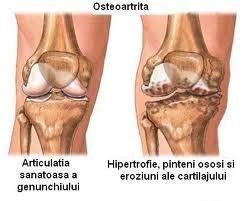 doresc să doarmă dureri articulare cum se tratează artroza în articulația genunchiului