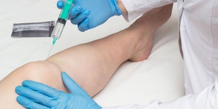 nume de injecții pentru durerile articulare dureri articulare și aerobic