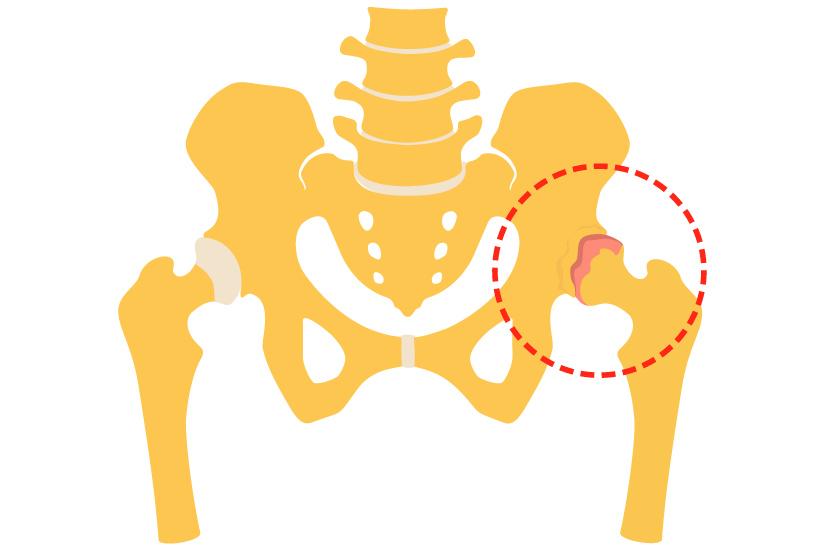 cu durere severă de artroză a articulației cotului