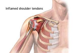 osteochondroza în simptomele și tratamentul articulației umărului de ce rănesc articulațiile călcâiului