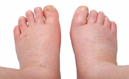 geluri în legume varicoase și umflarea picioarelor