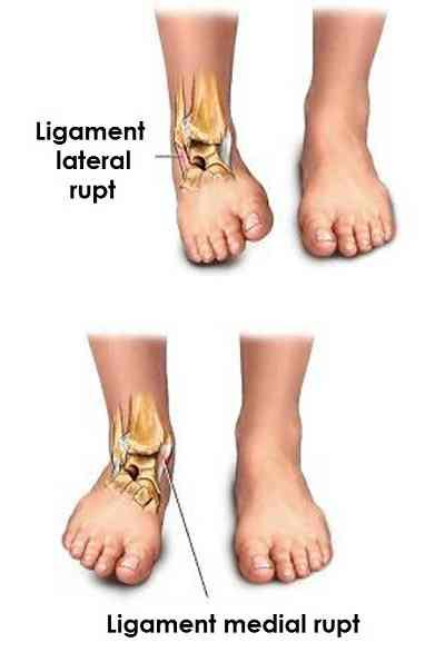 ruperea timpului de tratament al ligamentelor gleznei homeopatie pentru tratarea artritei degetelor